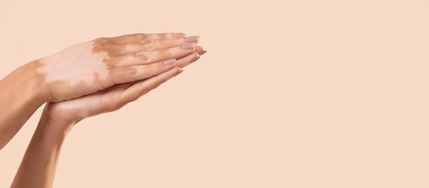 Vrouw toont haar vitiligo huiddelen