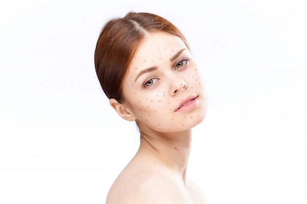 Vrouw uitslag en ontsteking van het gezicht, acne en waterpokken
