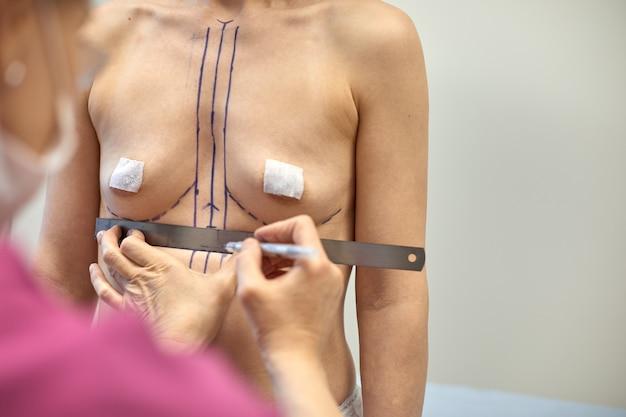 Vrouw van middelbare leeftijd met correctieteken voor plastische chirurgie