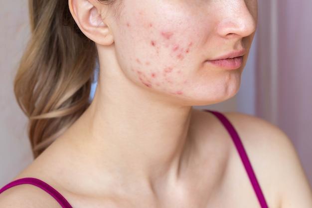 Vrouw wordt geconfronteerd met het probleem van acne