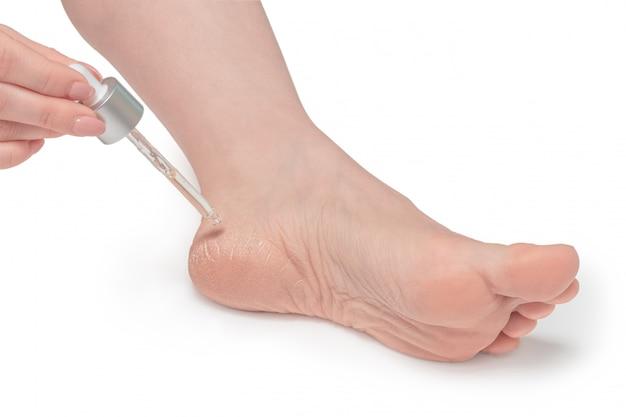 Vrouw zorgt voor droge huid van hielen, droge voet huidbehandeling, geïsoleerde witte achtergrond