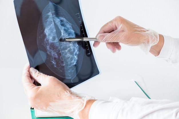 Vrouwelijke arts die mammografieresultaten op x-ray analyseert