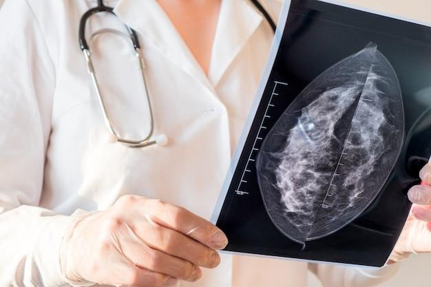 Vrouwelijke arts die mammografieresultaten op x-ray bekijkt