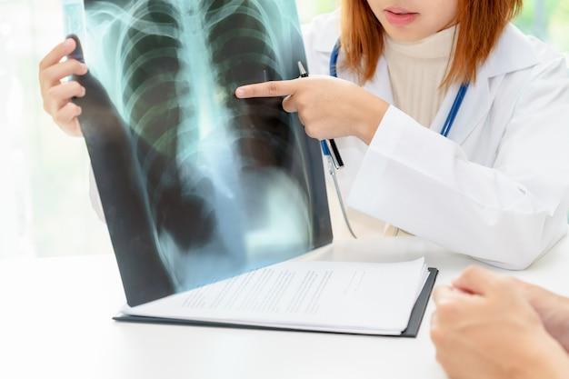 Vrouwelijke arts die over longen met x-ray film onderzoekt.