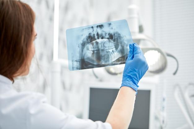 Vrouwelijke arts houden en kijken naar tandheelkundige röntgenfoto.