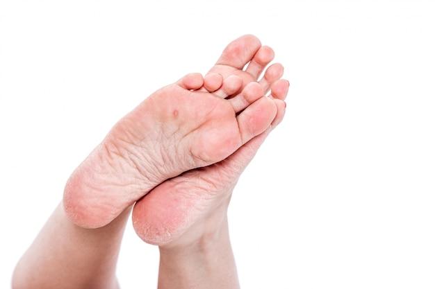 Vrouwelijke benen met overdried dehydrated droge huid op hielenclose-up
