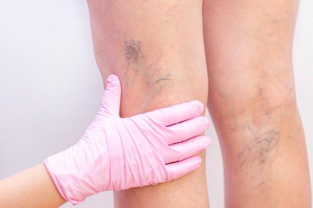 Vrouwelijke benen met spataderen.