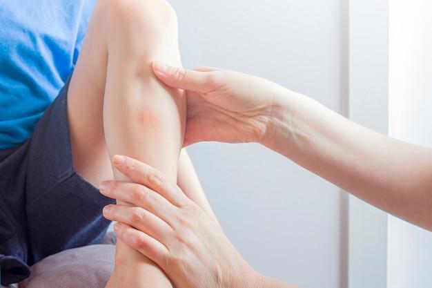 Vrouwelijke hand die zalf op de kneuzing op been van kind toepast. pijn, hematoom.