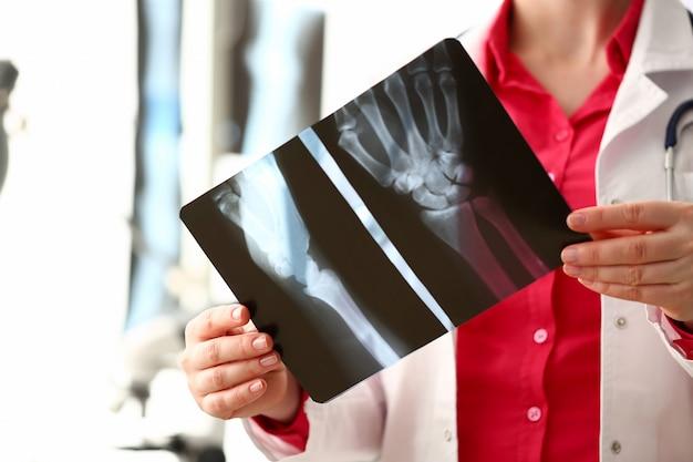 Vrouwelijke radioloog houdt in de hand xray film