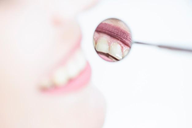 Weerspiegeling van de tanden van een vrouw in tandartsspiegel