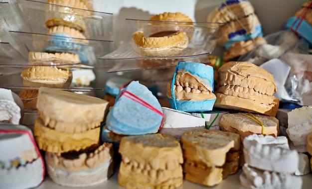 Werk van een tandtechnicus. afgietsels uit de kaken van patiënten voor de vervaardiging van prothesen.