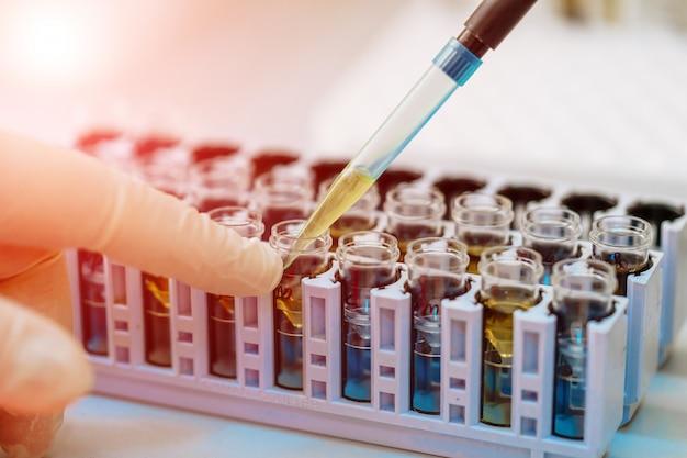 Wetenschapper die met bloedmonster in laboratorium werkt