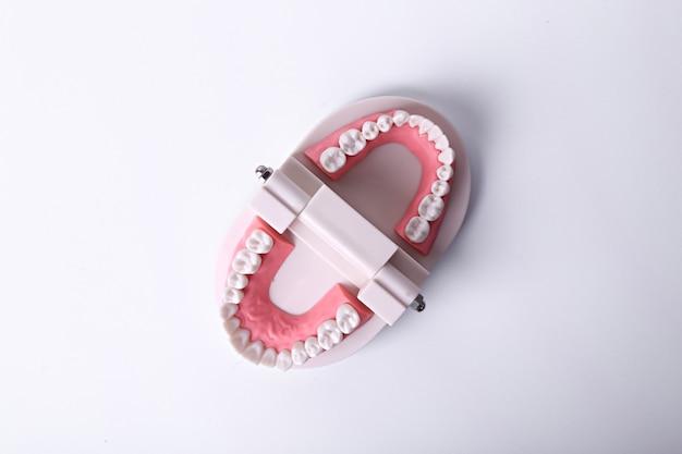 Witte tanden