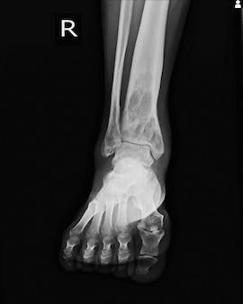 X-ray rt.ankle vinden van intramedullaire osterolytische laesie van rechter distale tibia