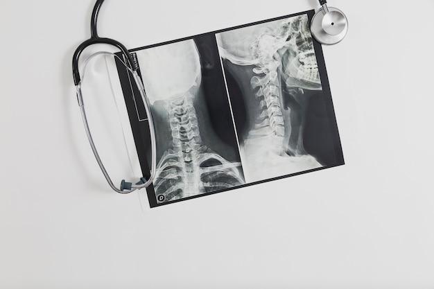 X ray scannen met stethoscoop