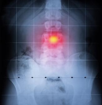 X-ray, wervelkolom en bekken van het menselijk lichaam. rugpijn gemarkeerd in het rood