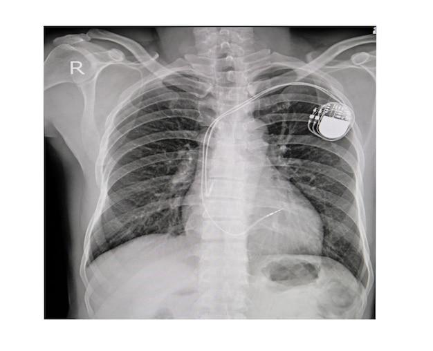 X-thoraxfoto van permanent pacemakerimplantaat in lichaamskas