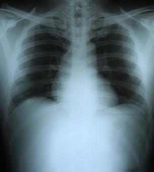 Xray van een menselijke thorax (borst).