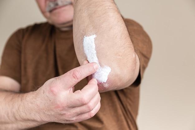 Zalf voor psoriasis. behandeling van huidziekten met zalven als toedieningsvorm van het geneesmiddel. patiënt veroorzaakt medische therapeutische zalf dikke consistentie of crème-vochtinbrengende crème op de huid in de ellebooggebied close-up