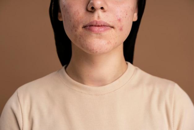 Zelfverzekerde jonge vrouw met acneclose-up