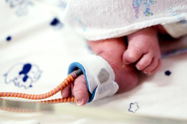 Zieke pasgeboren babyvoet plaats een bandje om zuurstof in het bloed te meten en de zuurstofwaarde voor organen te zien.