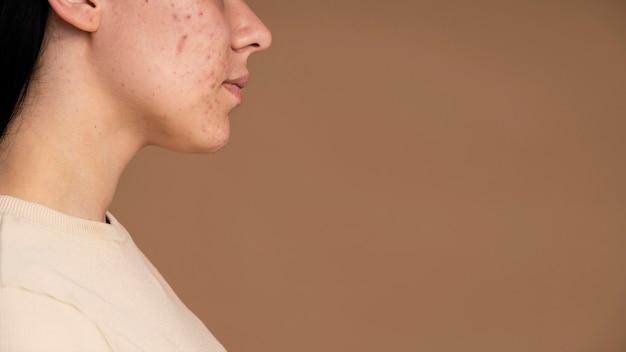 Zijaanzicht jonge vrouw met acne