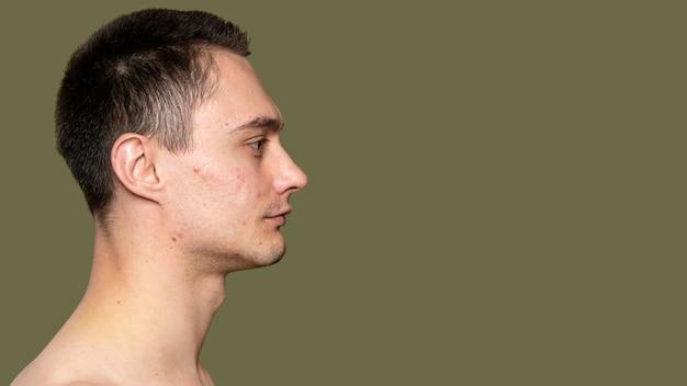 Zijaanzicht portret van een jonge man met acne