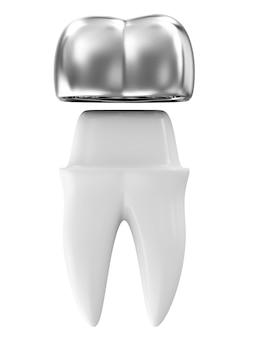 Zilveren tandkroon op een tand geïsoleerd op een witte achtergrond