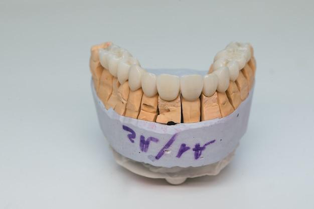 Zirkonium kronen. keramische tanden met het implantaat op een gipsmodel dat op witte achtergrond wordt geïsoleerd. keramische brug op gipsmodel.