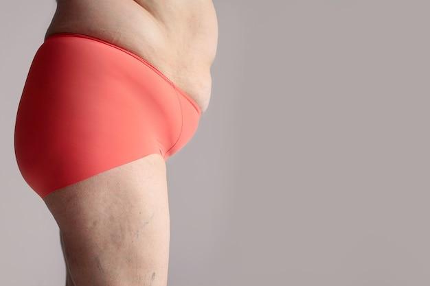 Zwaarlijvige vrouw met dikke billen, zwaarlijvig vrouwelijk lichaam