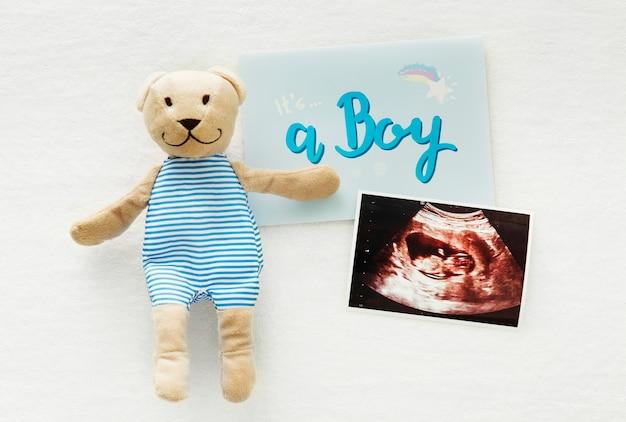 Zwangerschap aankondiging geslacht onthullen, het is een jongen