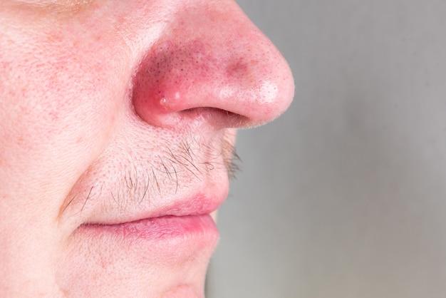 Zwarte stippen en acne op de neus.