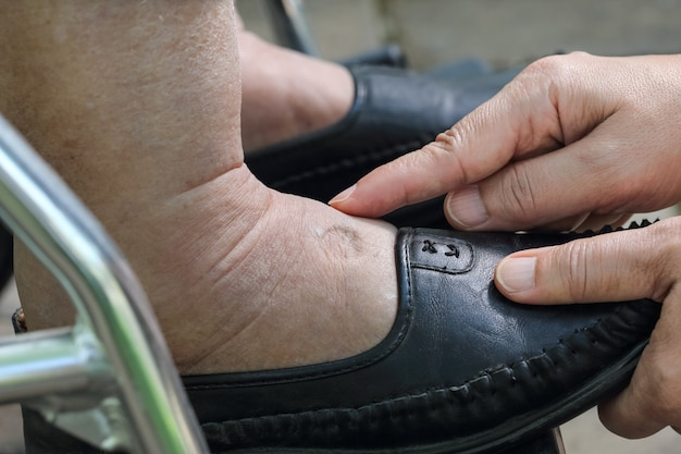 Zwelling van enkels en voeten test door vinger op gezwollen gebied te duwen zal een put verschijnen.