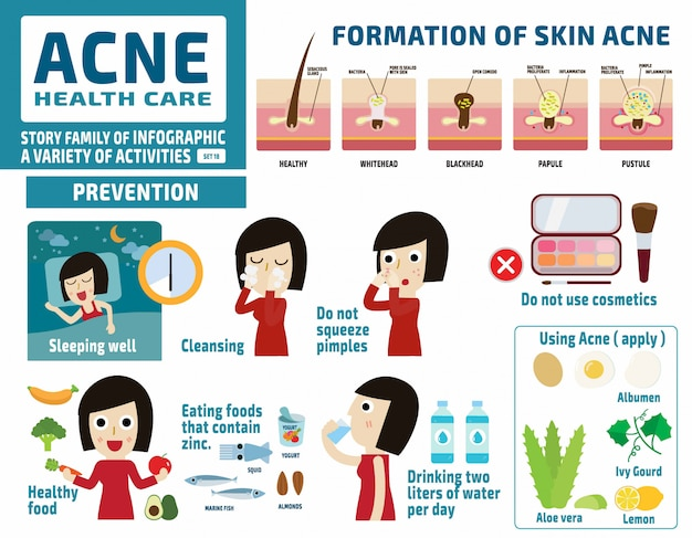 Acne en beschermen. gezondheidszorg concept. infographic elementen.