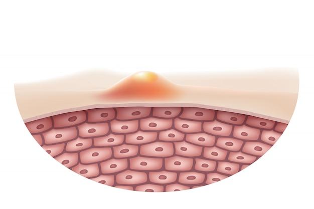 Acne huid