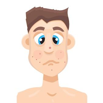 Acne man