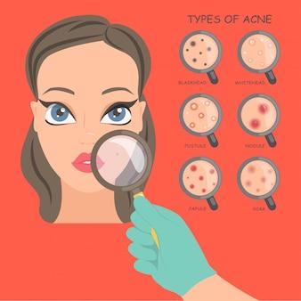Acne op het gezicht, een schoonheidsspecialiste onderzoekt de patiënt.