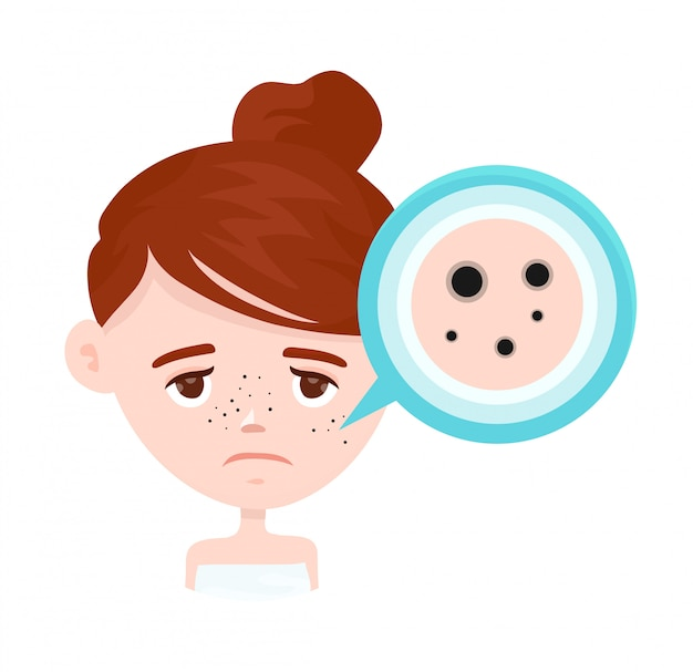 Acne, zwarte vlekken op het gezicht van het meisje