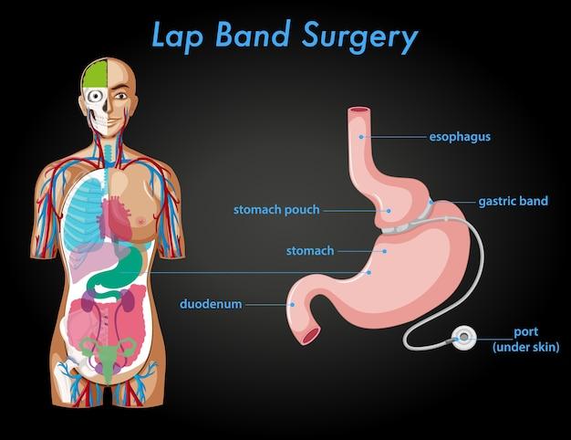 Anatomie van de schootbandoperatie