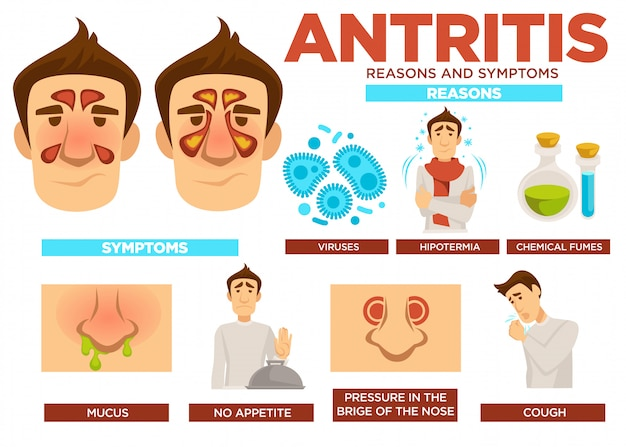 Antritis redenen en symptomen poster met tekst vector