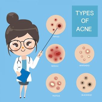 Artsen adviseren type van acne.