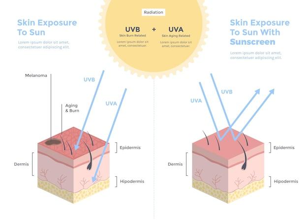 Biologische platte zonbescherming infographic