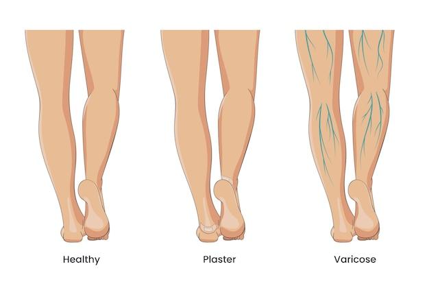 Blote vrouwelijke benen gezond met stripverband op hielen met spataderen hiel eelt of wond