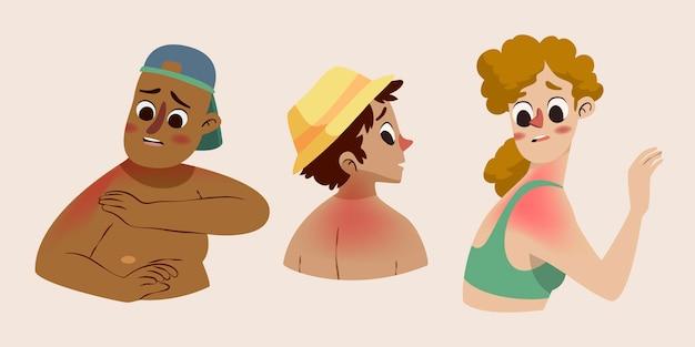 Cartoon mensen met een zonnebrand illustratie