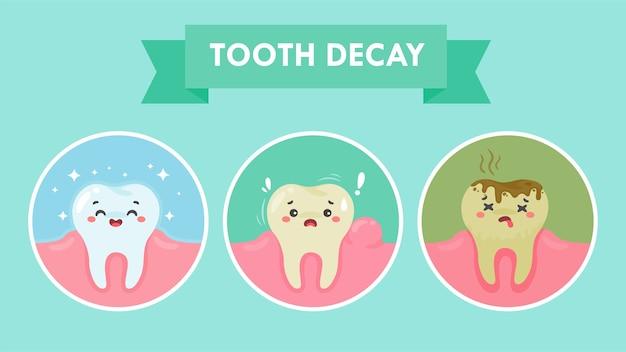 Cartoon tanden en tandvlees in de mond zijn blij met het probleem van tandbederf. er zit tandplak op de tanden.