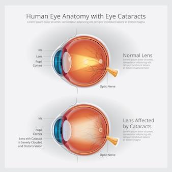 Cataracts vision disorder and normal eye vision anatomy illustration