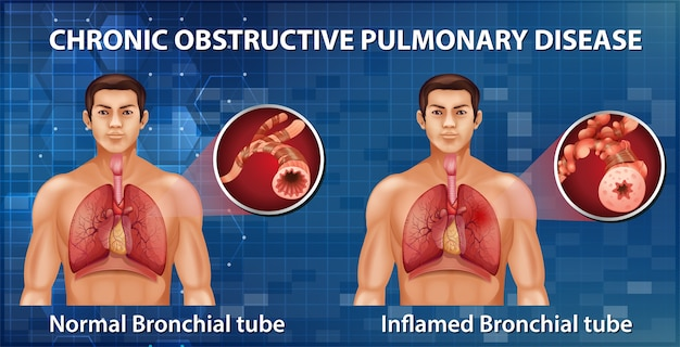 Chronische obstructieve longziekte