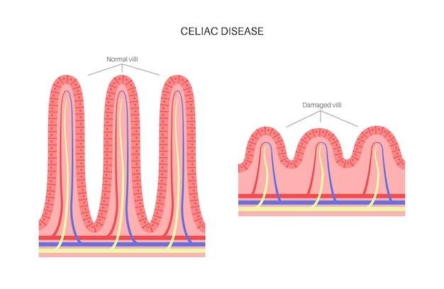 Coeliakie. beschadigde en normale darmvlokken in het oppervlak van de darmwanden.