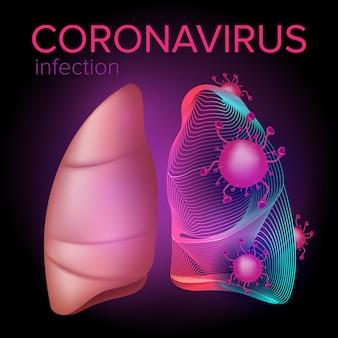 Coronavirus-infectie uit het midden-oosten valt de menselijke longen aan. illustratie van het ademhalingssyndroom uit china. gezondheid en medisch ontwerpconcept