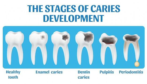 De stadia van cariësontwikkeling.